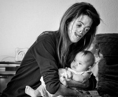 """""""Amor sin condición"""" de Vicente Guill Fuster. Foto ganadora del III Concurso de Fotografía Generosidad del 2018, FCM."""